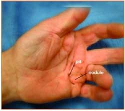 Dupuytren's disease may present as a small lump, pit, or thickened cord in the palm of the hand